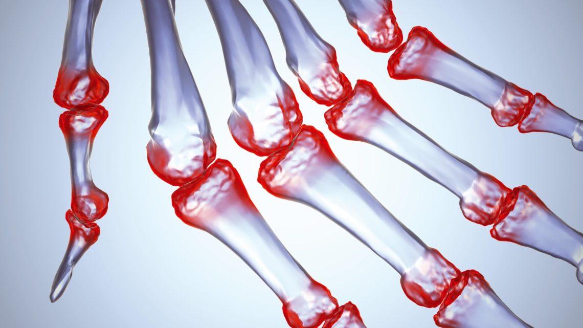 Всемирный день борьбы c артритом.