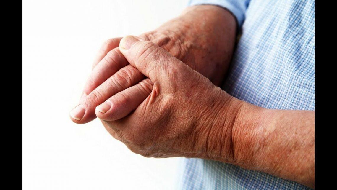 Артрит -воспаление суставов.