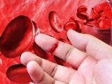 17 апреля – Всемирный день гемофилии