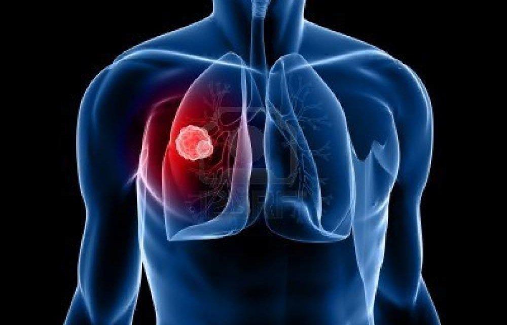 24 марта – Всемирный день борьбы с туберкулезом.