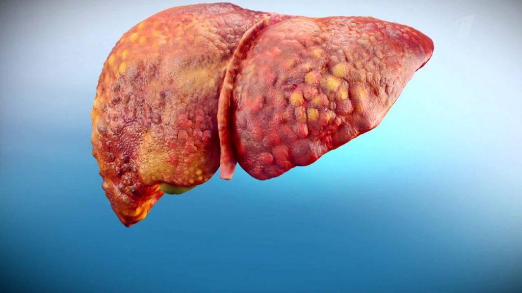 Всемирный день борьбы  с гепатитом.