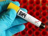Начинает ВИЧ, приходит СПИД